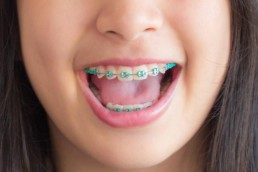 orthodontics for kids coral springs